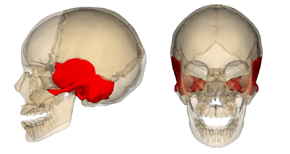 شکستگی استخوان تمپورال