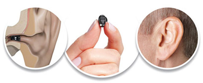 Completely invisible hearing aids