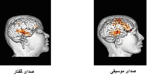 فعال شدن مناطق مغزی با صدای موسیقی و صدای گفتار