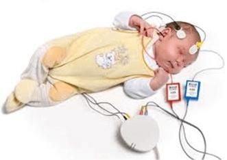 ABR نوزادان