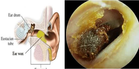 جرم گوش | تاثیر آن بر سیستم شنوایی