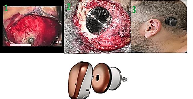 پروتزهای قابل کاشت استخوانی BAHA