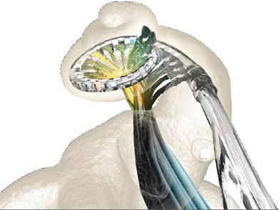 کاشت حلزون