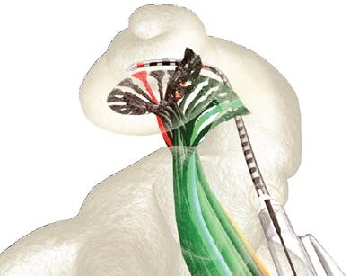 انواع کاشت حلزون