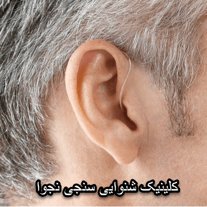 وزوز گوش چيست؟