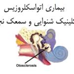-بیماری اتواسکلروزین